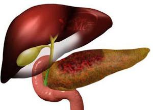 Симптомы некроза поджелудочной железы