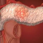 симптомы хронического панкератита