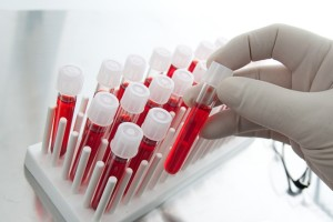 Диагностика онкологии
