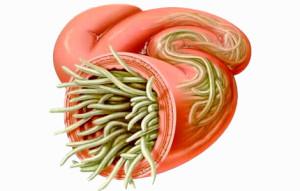 Признаки наличия паразитов в кишечнике человека