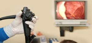 Диагностика полипов в кишечнике